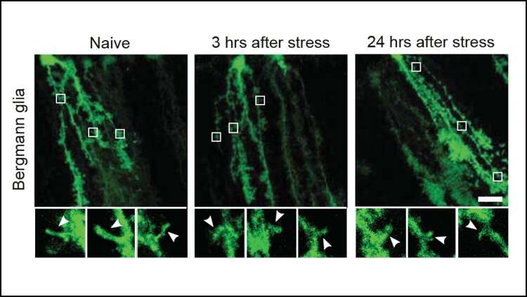 How stress remodels the brain