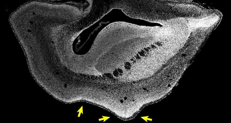 Human brain size gene triggers bigger brain in monkeys