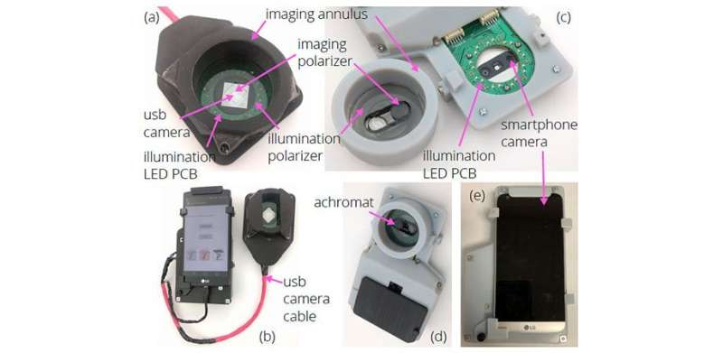 Innovative smartphone-camera adaptation images melanoma and non-melanoma