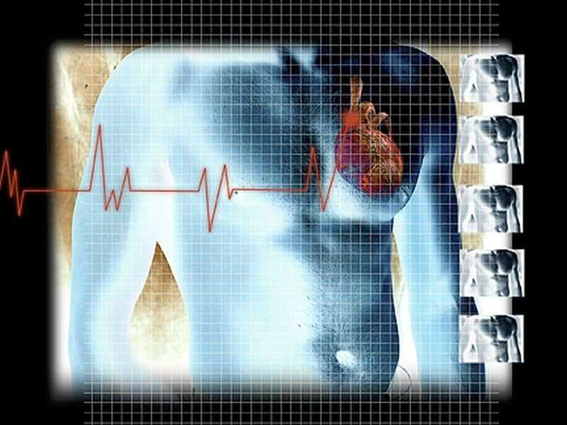 Is COVID-19 causing more people to suffer heart attacks at home?