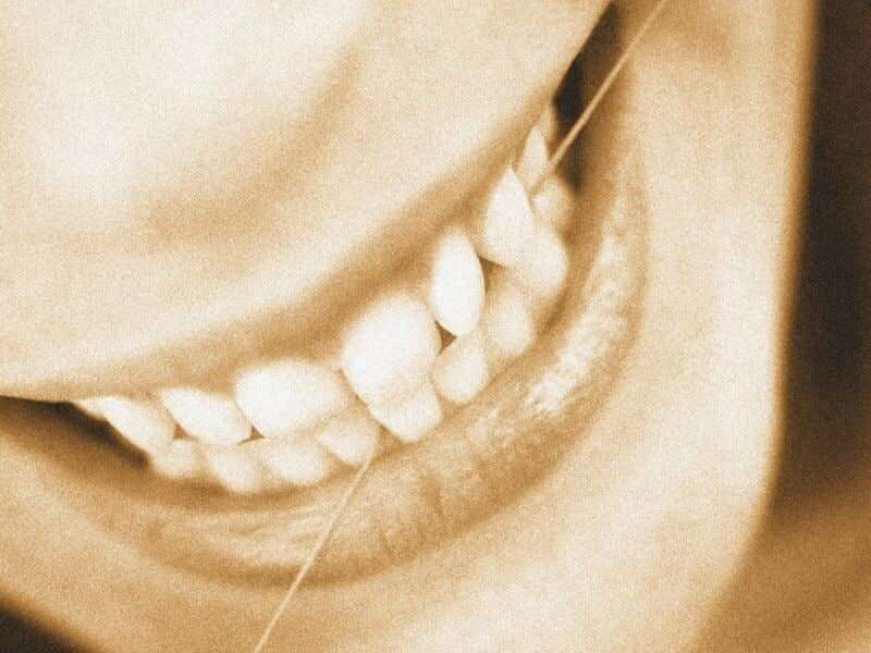 Keep flossing: study ties gum disease to higher cancer risk