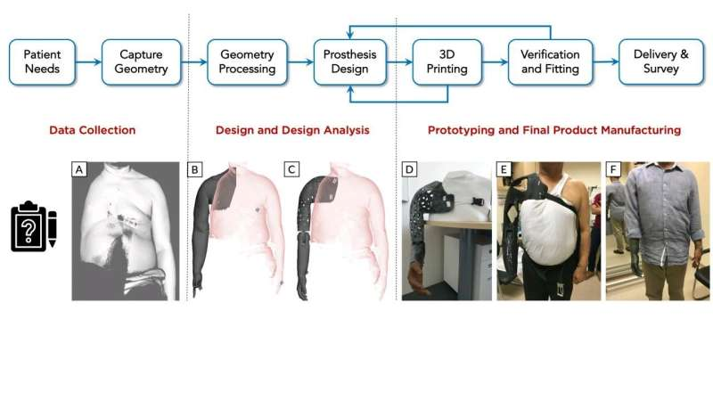Low cost, customized prosthesis using 3D printing
