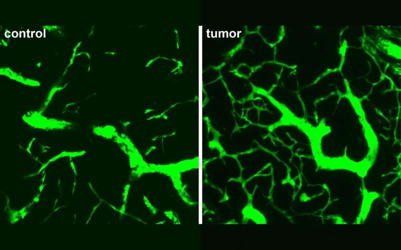 Lymphoma's different route revealed