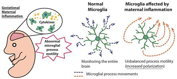 Maternal immune activation induces sustained changes in fetal microglia motility