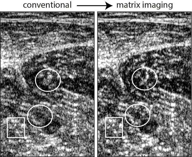 Matrix imaging: an innovation for improving ultrasound resolution