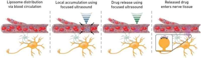 Millimetre-precision drug delivery to the brain