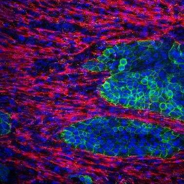 Mix and match: New 3D cell culture model replicates fibrotic elements of pancreatic cancer