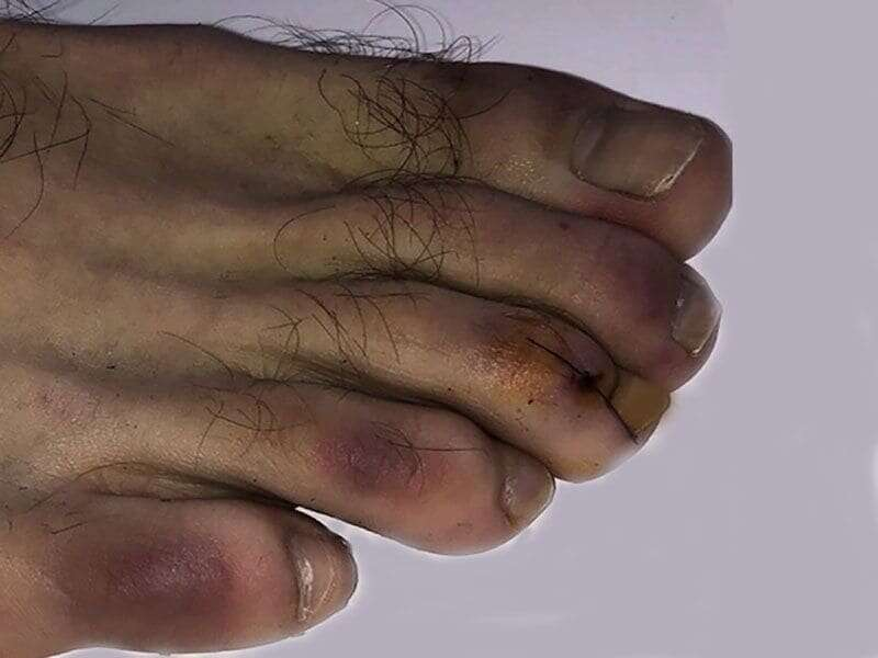 More symptoms of coronavirus: COVID toes, skin rashes