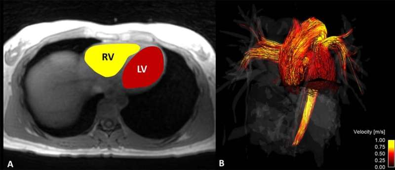MRI shows blood flow differs in men and women