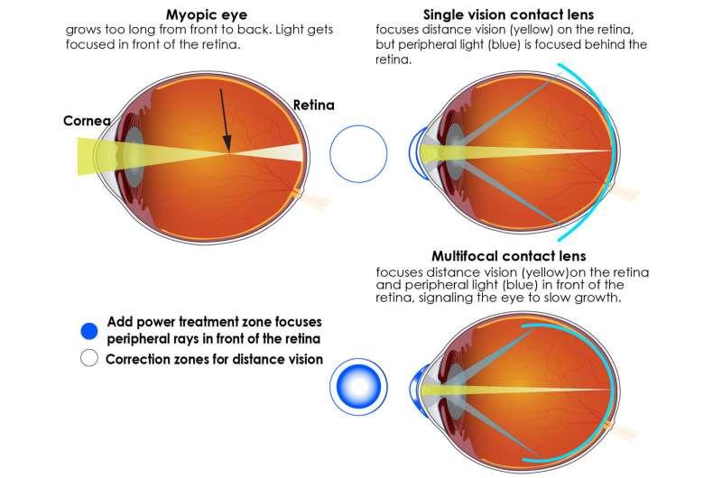 Multifocal contact lenses slow myopia progression in children