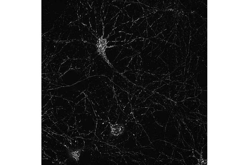 Neurons' energy organelle protected from damage linked to ALS, Alzheimer's