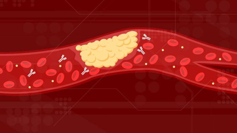 New cause of COVID-19 blood clots identified