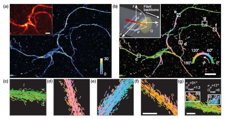 New microscopy method provides unprecedented look at amyloid protein structure