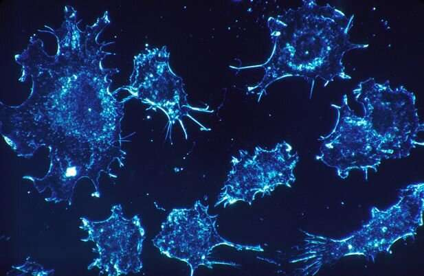 New study into a rare type of cancer in abdomen lining shows possible immunotherapy treatment