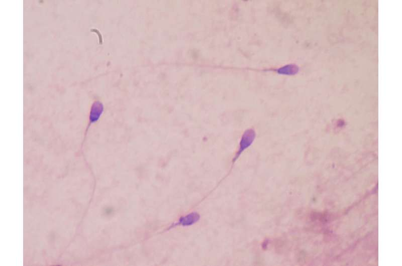 Overweight and obesity are associated with a low sperm quality