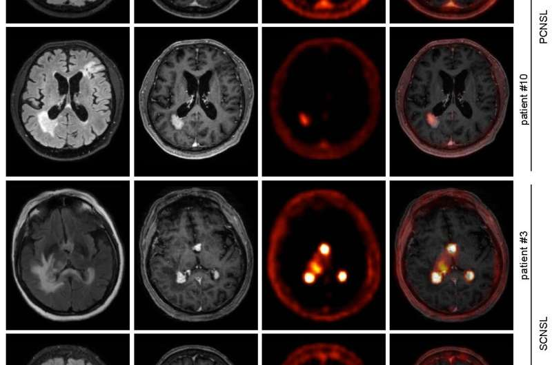 PET imaging tracer proves effective for diagnosing and managing rare CNS B-cell lymphoma