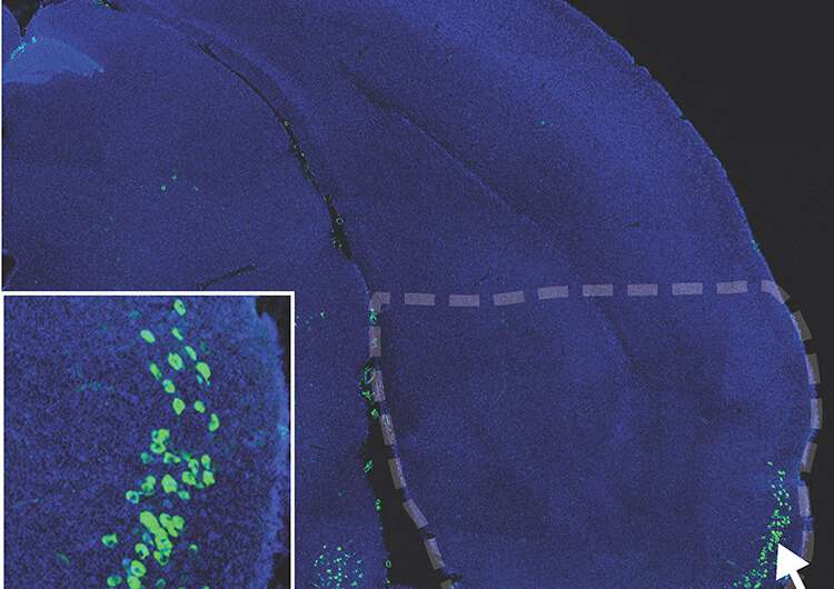 Plasticity may make neurons vulnerable to Alzheimer's disease