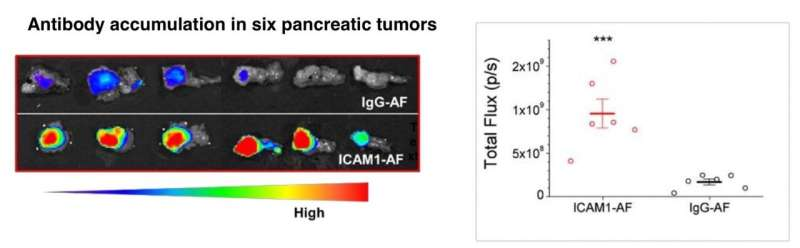 Precision chemo-immunotherapy for pancreatic cancer?