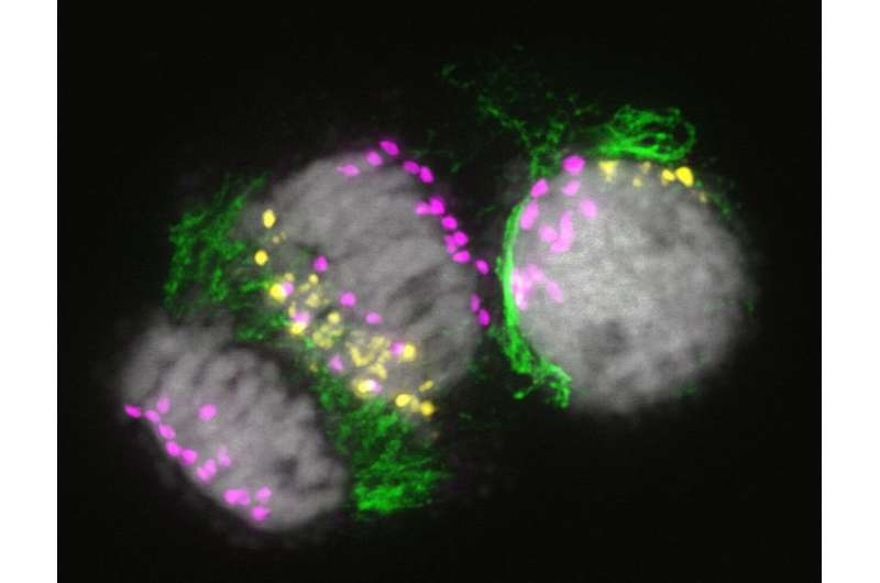Process behind the organ-specific elimination of chromosomes in plants unveiled