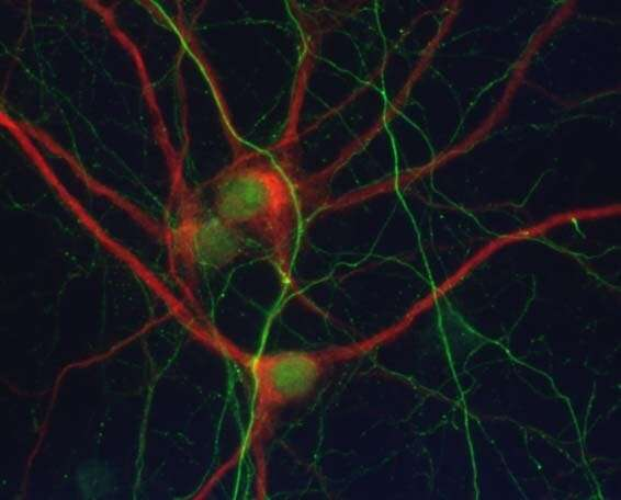 Reelin reverts the main pathological processes related to Alzheimer's and other tauopathy