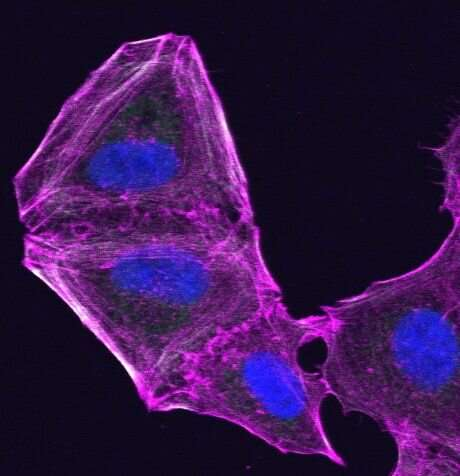 Research identifies new route for tackling drug resistance in skin cancer cells