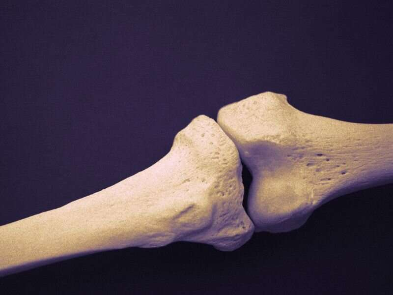 Risk for bone fractures up for patients with psoriatic diseases