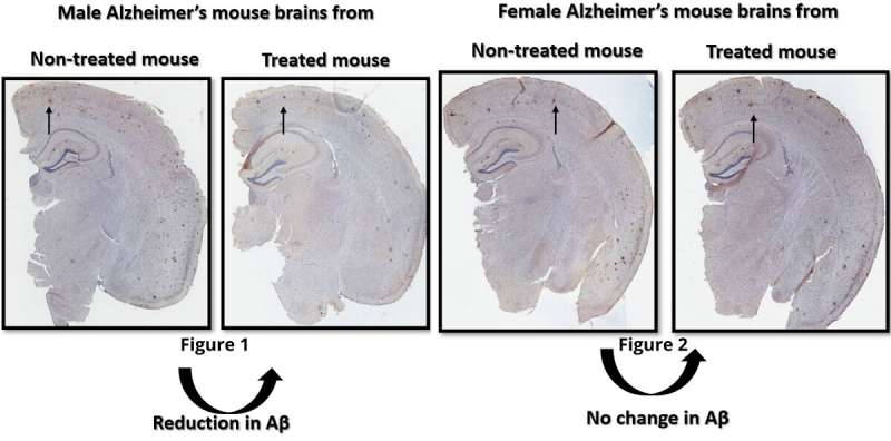 Sex-specific Alzheimer's treatment could benefit males over females