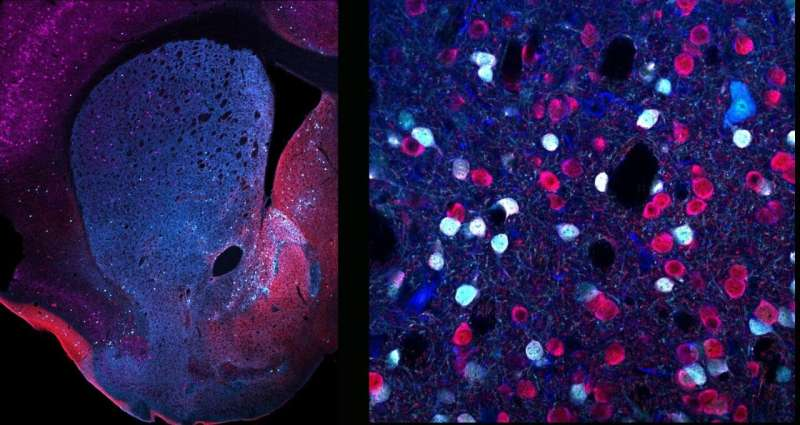Significant differences exist among neurons expressing dopamine receptors