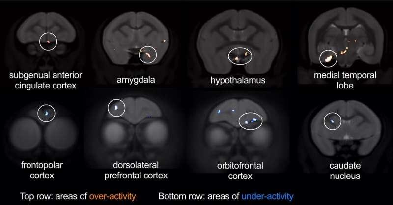 Single brain region links depression and anxiety, heart disease, and treatment sensitivity