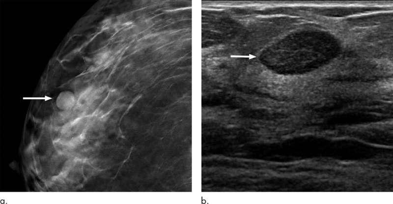 Six-month follow-up appropriate for BI-RADS 3 findings on mammography