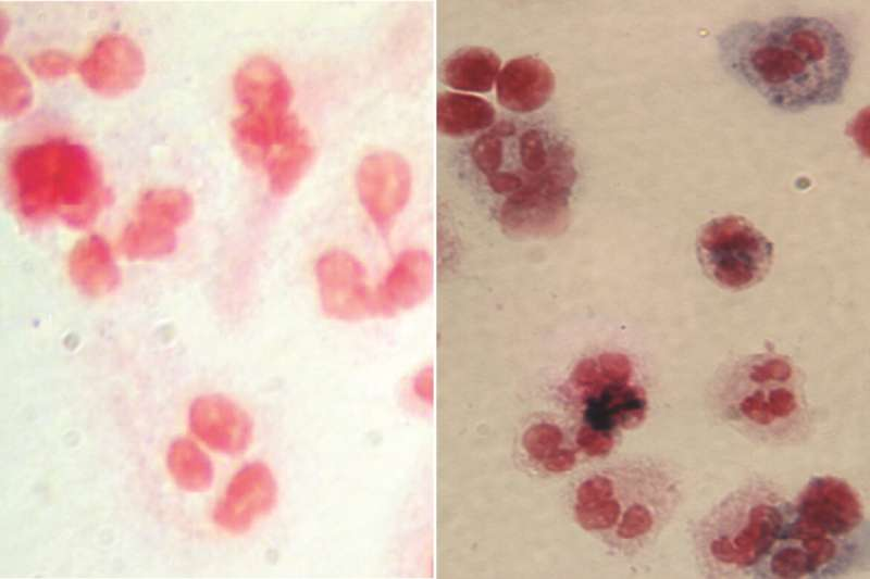 Six patients with rare blood disease are doing well after gene therapy clinical trial