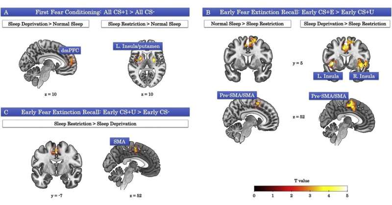 Sleep loss hijacks brain's activity during learning