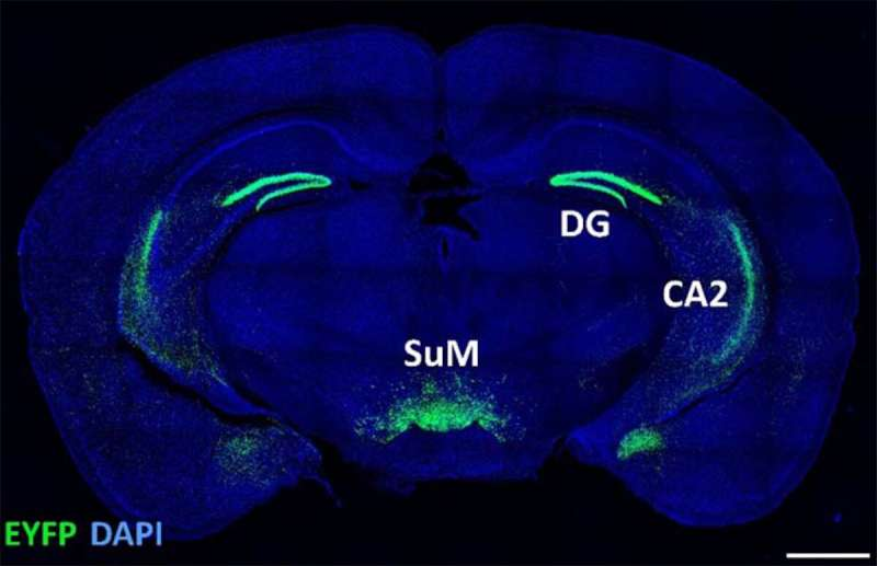 Social novelty has a special place in the brain