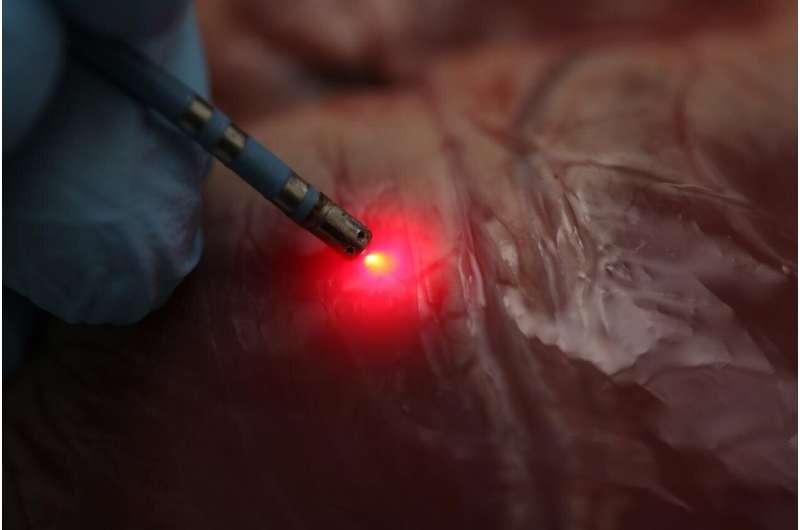 Spectroscopy approach poised to improve treatment for serious heart arrhythmia