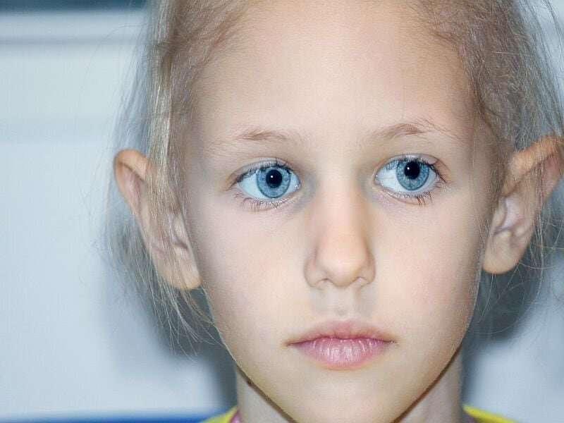 Survivors of childhood cancers at risk for shortened life span