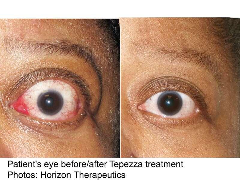 Teprotumumab bests placebo for active thyroid eye disease