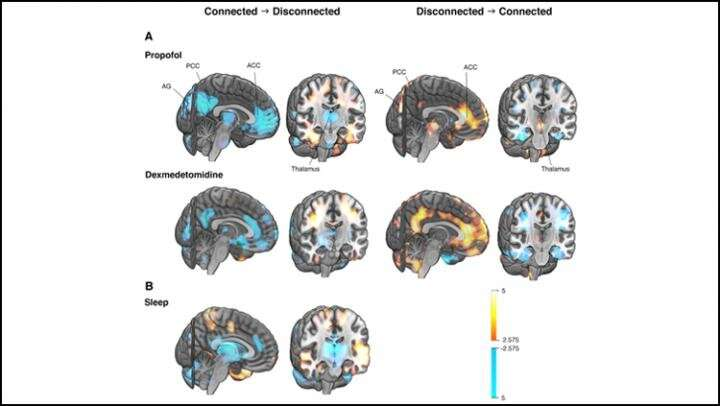 The brain network driving changes in consciousness