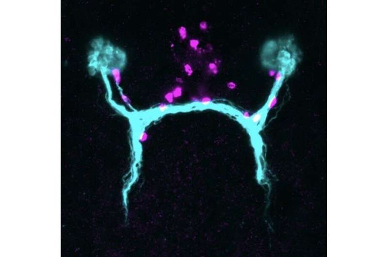These muscle cells are guideposts to help regenerative flatworms grow back their eyes