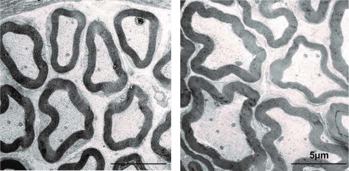 Thicker nerve fibres enable faster reactions in mice