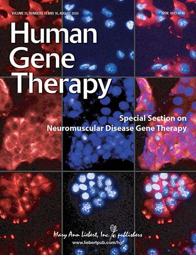 Toxicity of dorsal root ganglia is widely associated with CNS AAV gene therapy