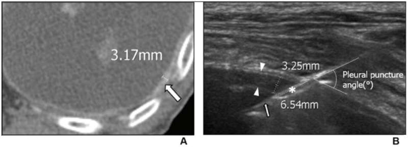 Ultrasound-guided percutaneous needle biopsy excellent for small pleural lesions diagnosis