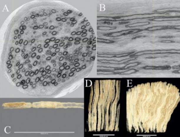 Unique 3-D images reveal the architecture of nerve fibers