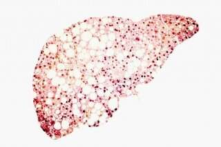 Vitamin E effective, safe for fatty liver in HIV patients