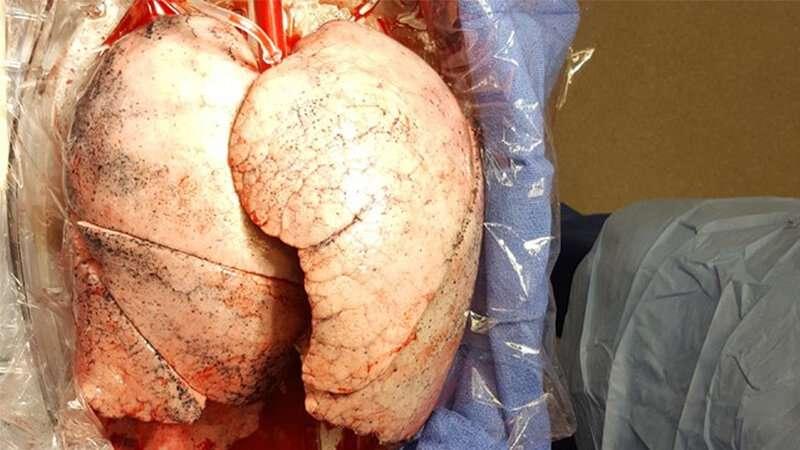 Will COVID-19 survivors require a lung transplant in the future?