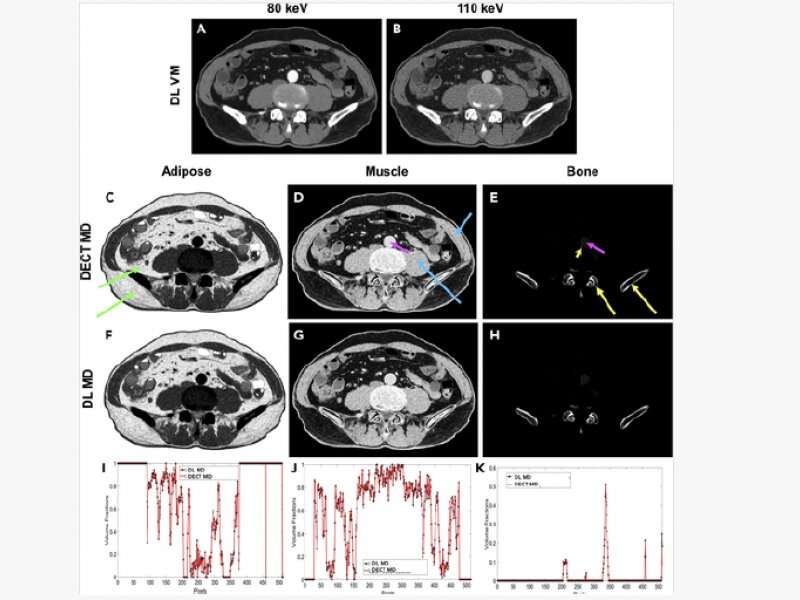 With deep learning algorithms, standard CT technology produces spectral images