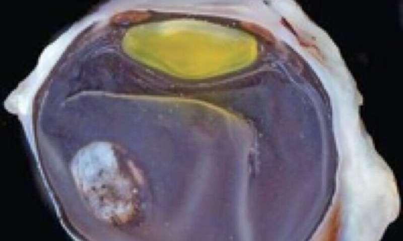 Zika virus affects eye development before but not after birth