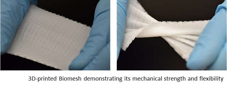 3-D printed Biomesh minimizes hernia repair complications