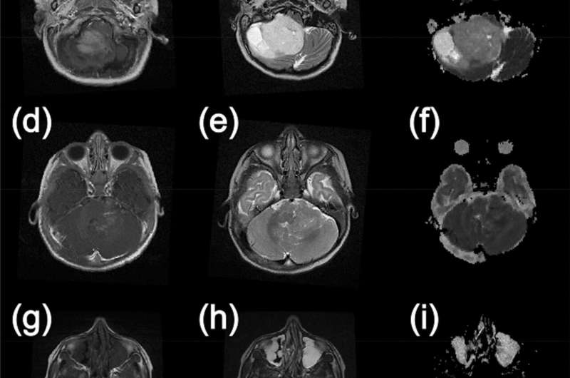 Child brain tumors can be classified by advanced imaging and AI