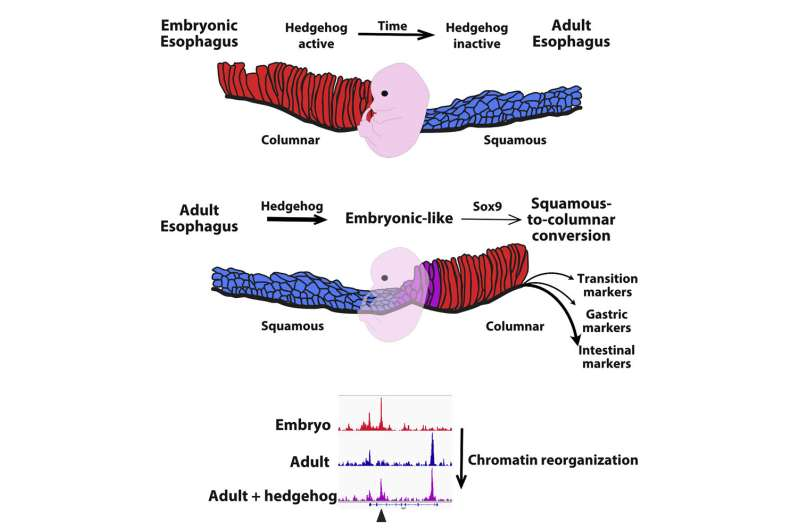 Esophageal cancer: Discovery of the mechanisms involved