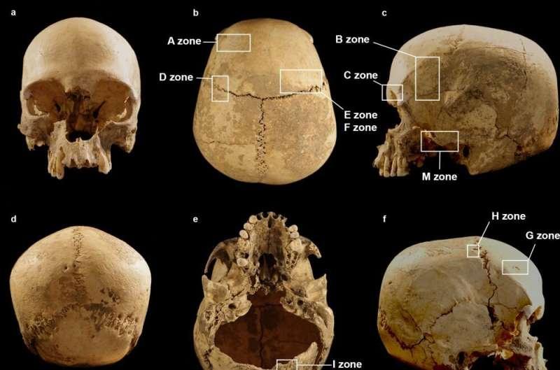Skull Journey: Πώς ένα ανθρώπινο κρανίο τελείωσε μόνος του σε ένα σπήλαιο στην Ιταλία